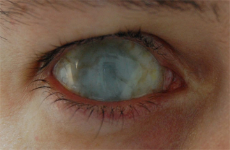 How To Make Contact Lenses Look Natural